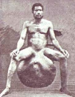 gigantskie-genitalii